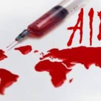 AIDS: metodi di prevenzione e di terapia