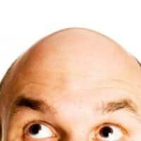 Nasce HairMax, la spazzola laser contro le calvizie.
