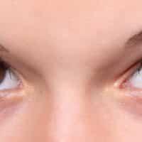 Migliorare l'aspetto del viso con la rinoplastica: Tipologie di intervento