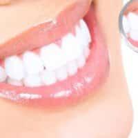 La corretta cura dei nostri denti