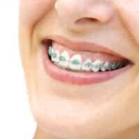 Corsi di ortodonzia: sviluppare le proprie competenze!
