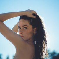 Gli integratori per la pelle contro raggi UV e macchie