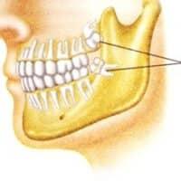I denti del giudizio: come averne cura