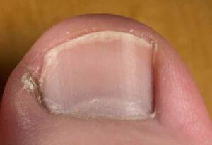 Come liberarsi dalle unghie incarnite