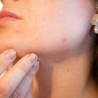 Brufoli e acne: perché è importante rivolgersi a un dermatologo