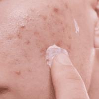 Come eliminare le cicatrici da acne a casa?