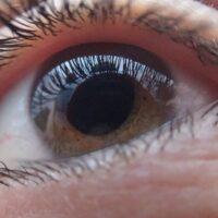 Il Glaucoma: sintomi, cause, terapia e rimedi naturali