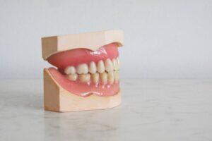 Come curare la parodontite Cause, sintomi e rimedi per la piorrea