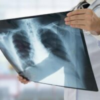 I vantaggi delle radiografie a domicilio