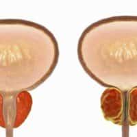 Quali sono le conseguenze invecchiamento vie urinarie?