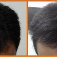 Trattamento prp capelli: come funziona e quali sono i risultati